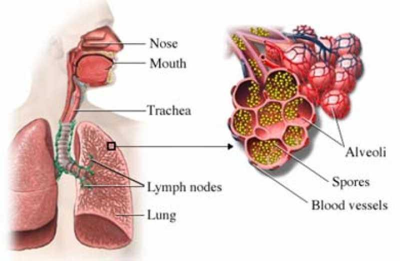 Aspergilosis pulmonar ¿Qué es y a quiénes afecta?