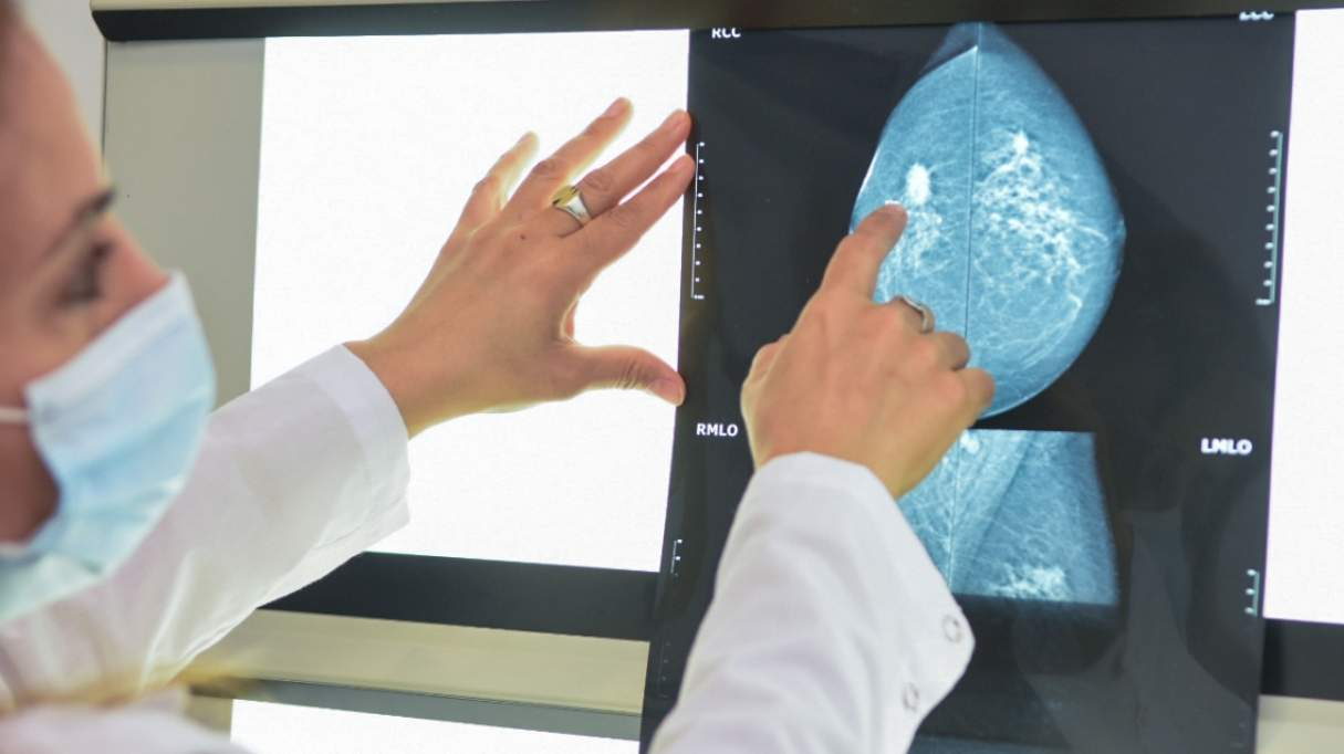 Cáncer de mama: la provincia recomienda retomar los estudios mamográficos