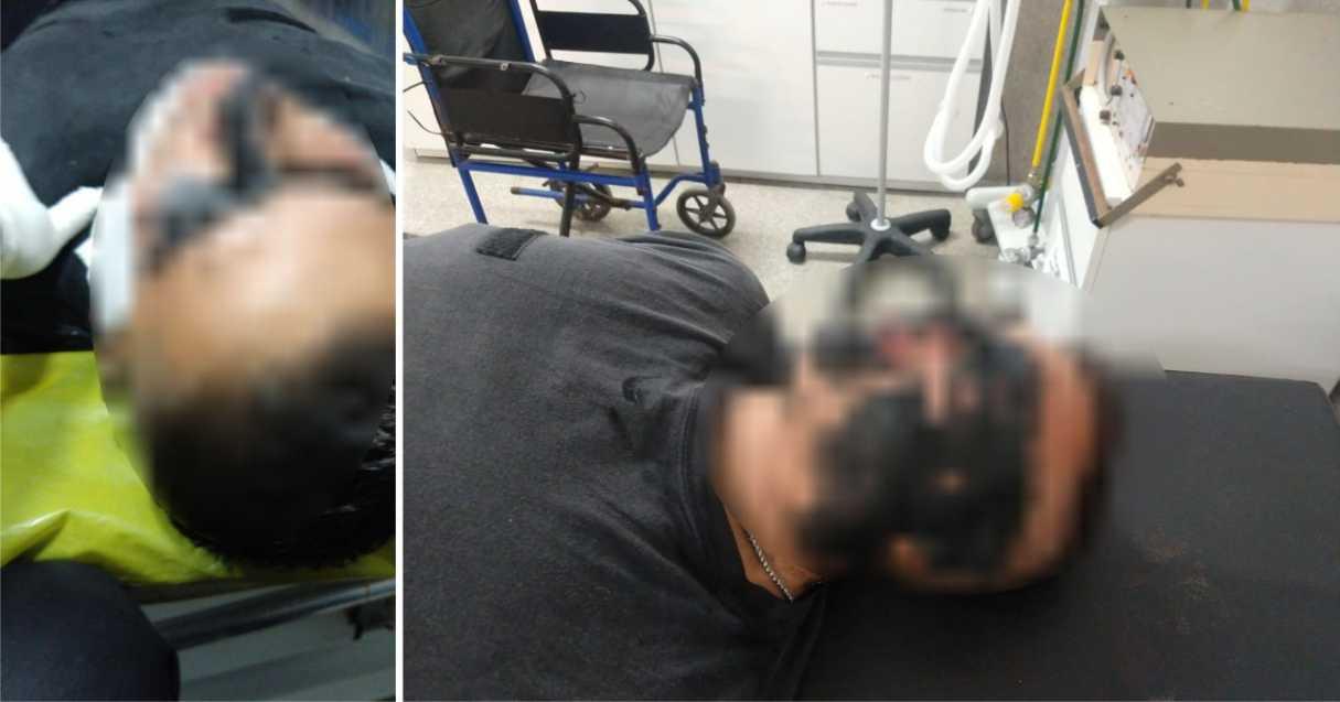 Atacaron con brea líquida a 4 policías del comando San Lorenzo