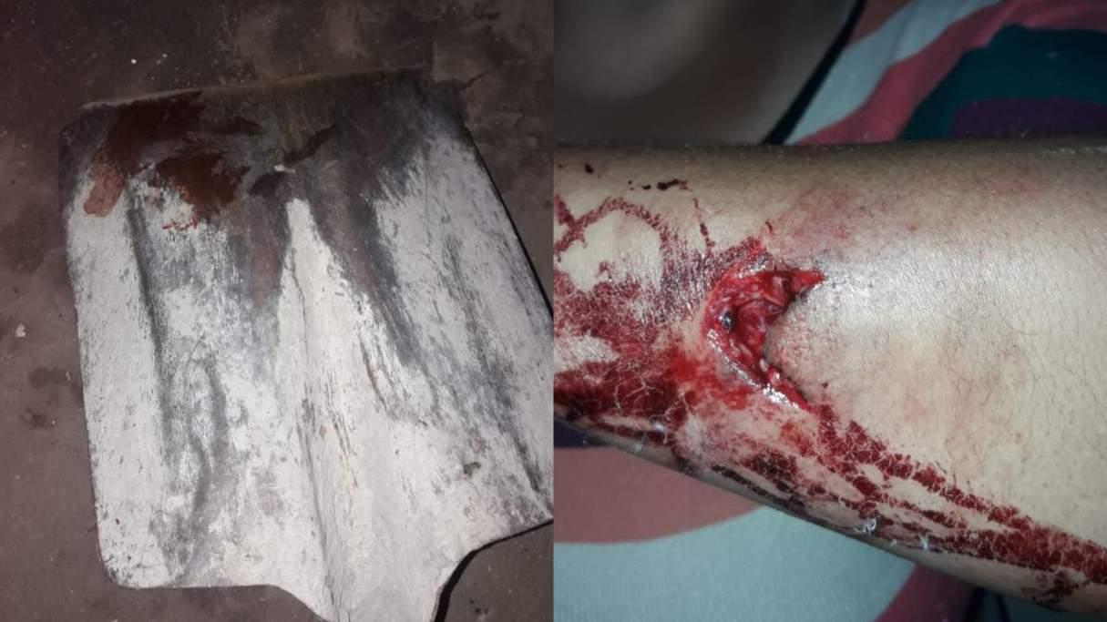 Fin de año violento: le pegó con una pala a su pareja en Capitán Bermúdez